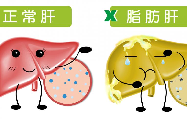 [新聞] 春天養肝五招事半功倍,不再養出脂肪肝